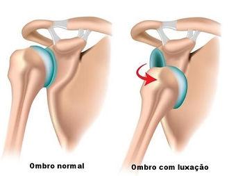 Luxação de ombro - Dr. Fernando Furlan  Cirurgião de Ombro e Cotovelo