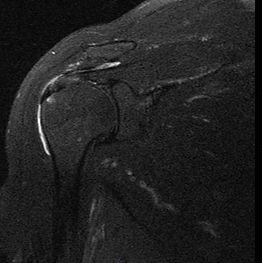 Lesão do tendão supraespinal / manguito rotador