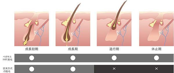 春日部のSHR脱毛-速い・痛くない・産毛まで処理できる最新機器使用.jpg