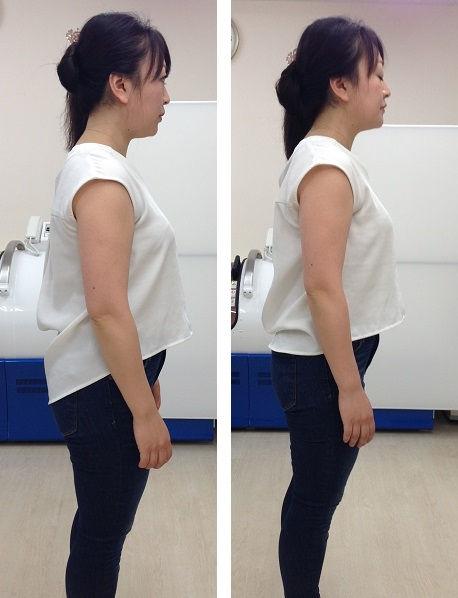 【初めての方】慢性的な腰痛、肩凝り、ひざ痛、四十肩、五十肩など