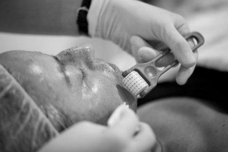 Micro Needling Boosts Collagen