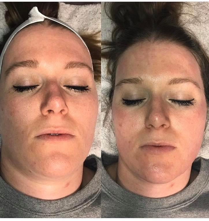 Before(Left) & After(Right) Dermaplaning
