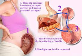Sugar and Pregnancy