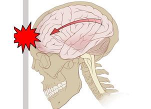 Commotions Cérébrales: Physiopathologie et Intervention Naturopathiques