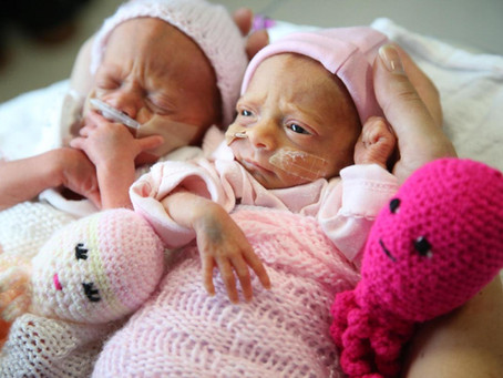 Domingo de Comunidad: Mi hijas nacieron Prematuras