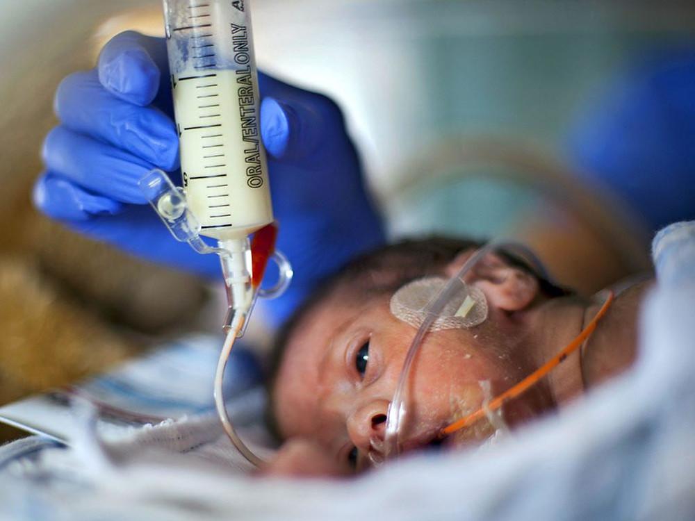 lactancia en bebe prematuro