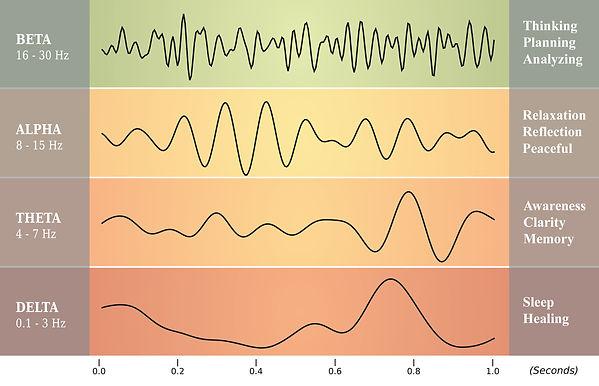 Brainwaves-sm.jpg