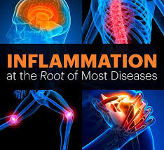 Are you inflamed and you don't know?