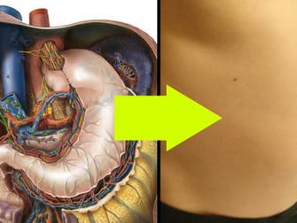 Kuren til Crohn's er kommet tættere efter vigtig opdagelse!