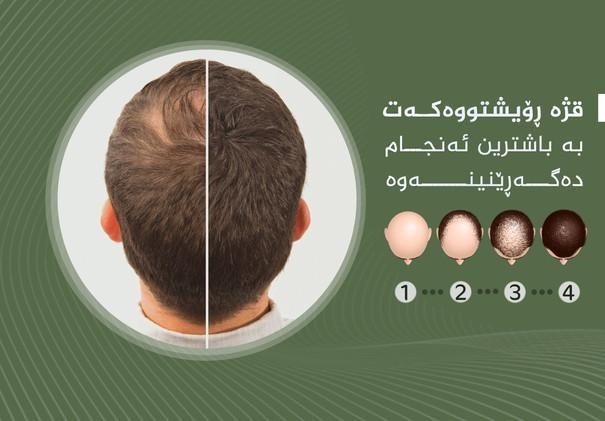 10-1 bald 03 copy.jpg
