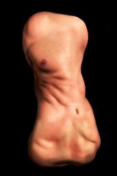 Body 15