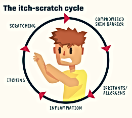 Itch Scratch Cycle