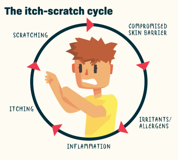 The Itch Scratch Cycle