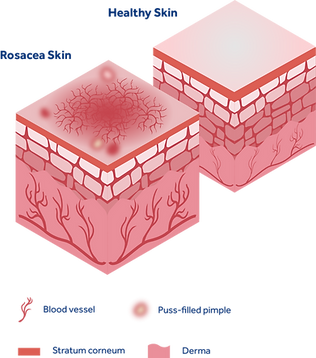 Diagram showing how Rosacea differs from healthy skin