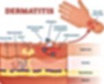 Dermatitis Diagram