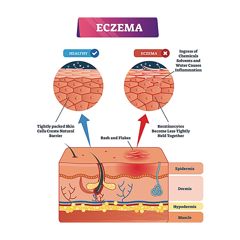Diagram showing skin structure affected by eczema dermatitis