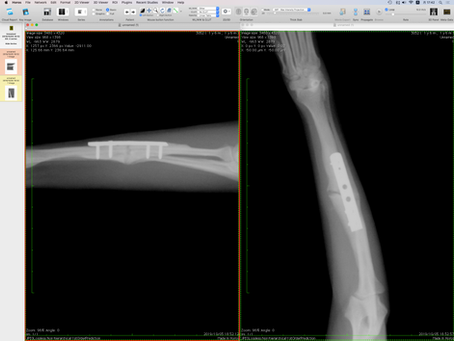 Case #061: 橈尺骨骨折のトイプードル,1歳5ヶ月齢,  AO2-2-1, BW5.60kg