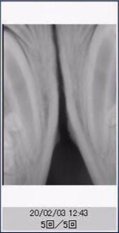 Case #057: (経過観察)MTAを用いた生活歯髄切断法を行ったラブラドール
