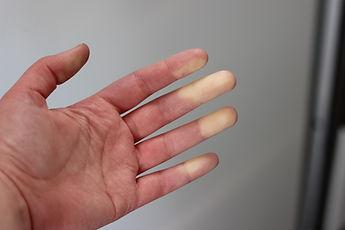 Hand arm vibration & HAVS
