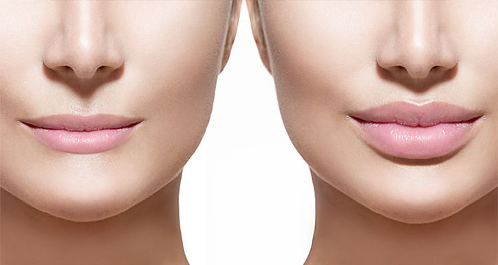 lip dermal filler