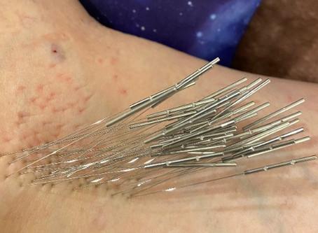 鍼は身体に対する攻撃?