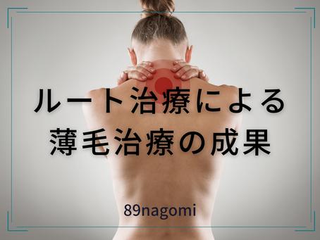 薄毛のルート治療成果(モニター募集)