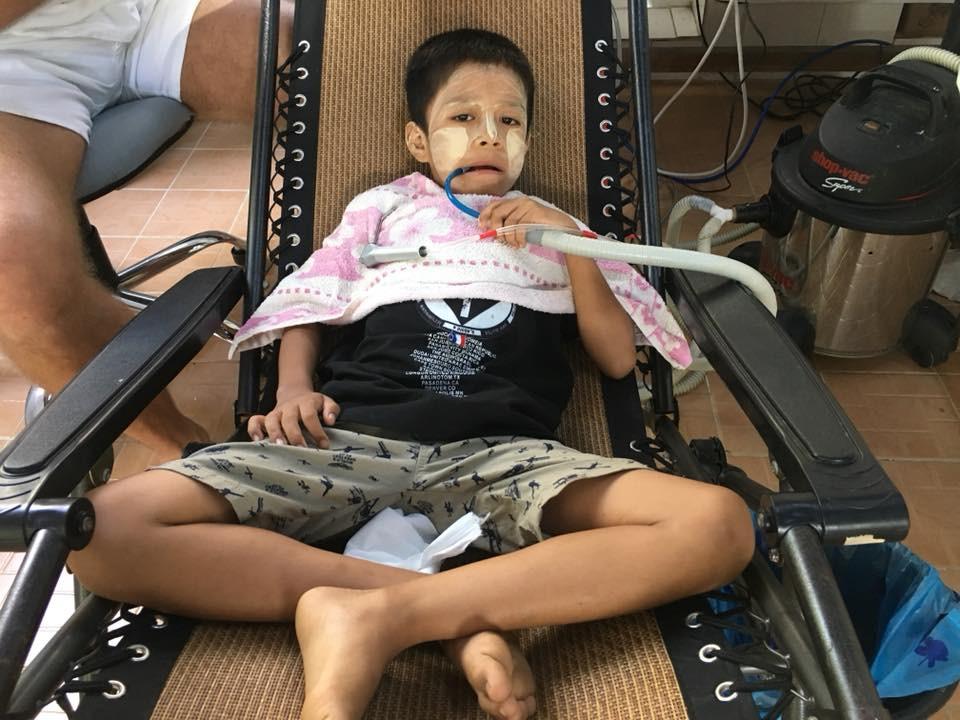 Můj hrdina z Ngapali - vydržel zubní ošetření a ani vevydal hlásku