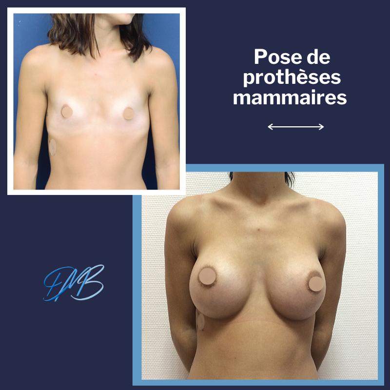 Hypotrophie mammaire majeur : Augmentation mammaire par pose de prothèses