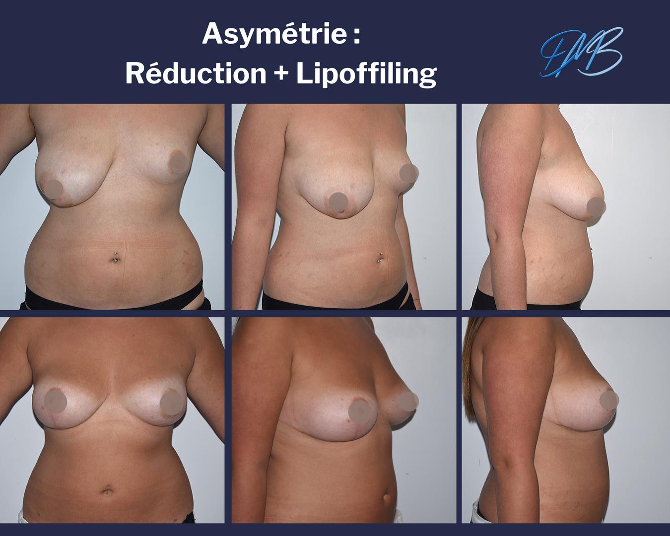 Asymétrie mammaire majeure : symétrisation par lipofilling + réduction mammaire