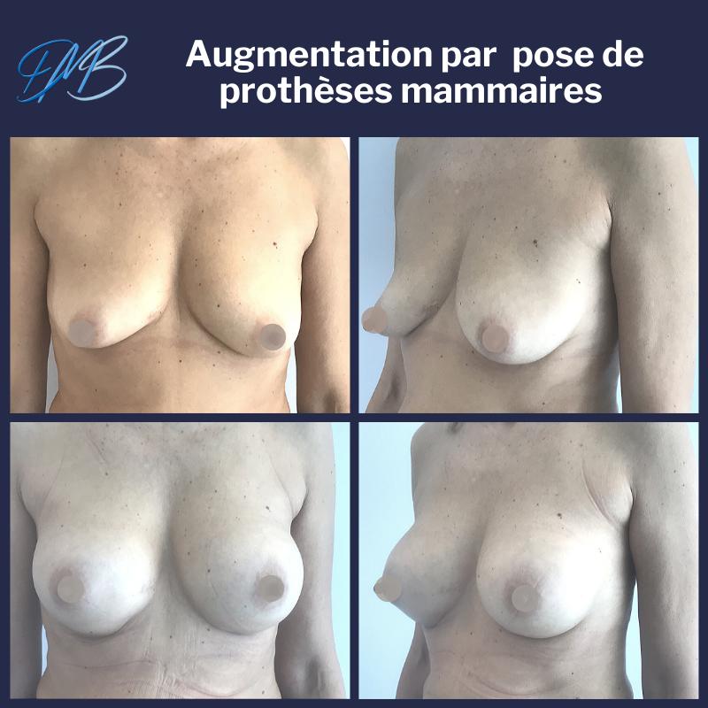 Augmentation mammaire par pose de prothèses