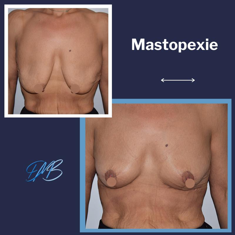 lifting des seins ; Mastopexie