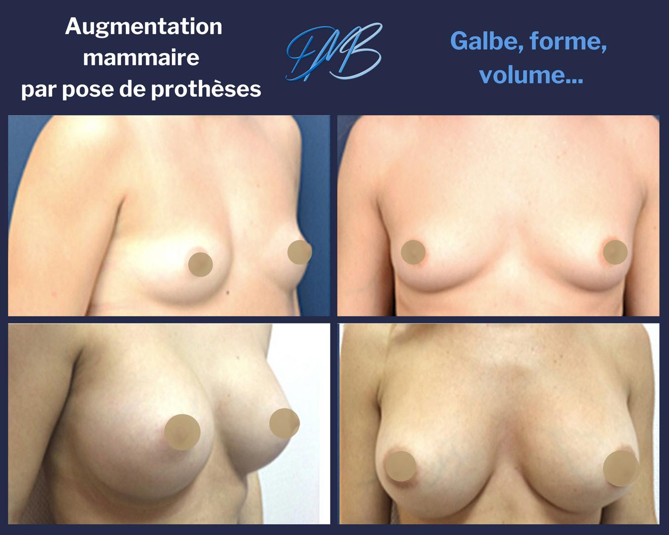 Augmentation_mammaire_par_prothèse_11.pn