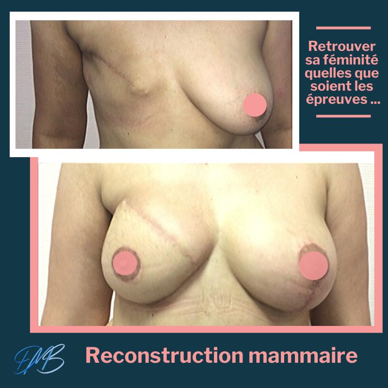 reconstruction mammaire par lambeau DIEP