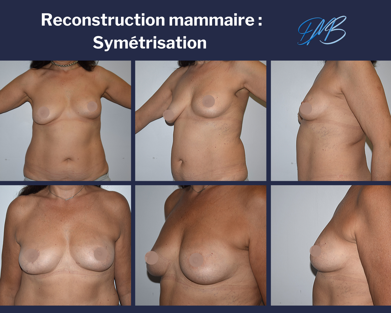reconstruction mammaire par lipofilling