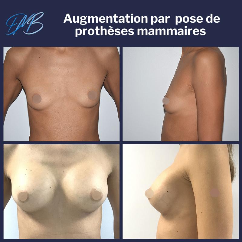 Augmentation mammaire par pose de prothèses.