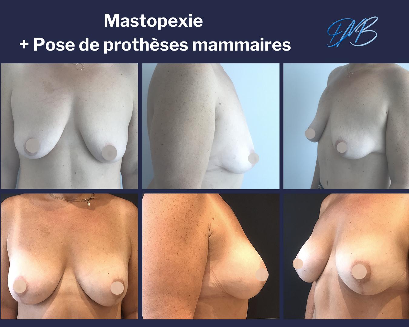 augmentation mammaire par pose de prothèse + mastopexie