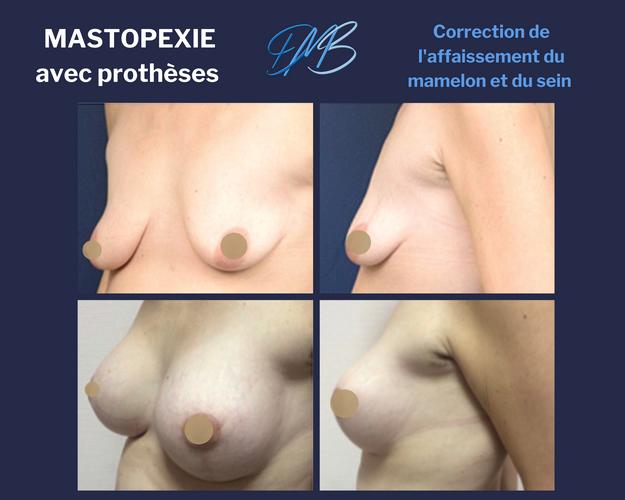 : augmentation mammaire par pose de prothèse + mastopexie