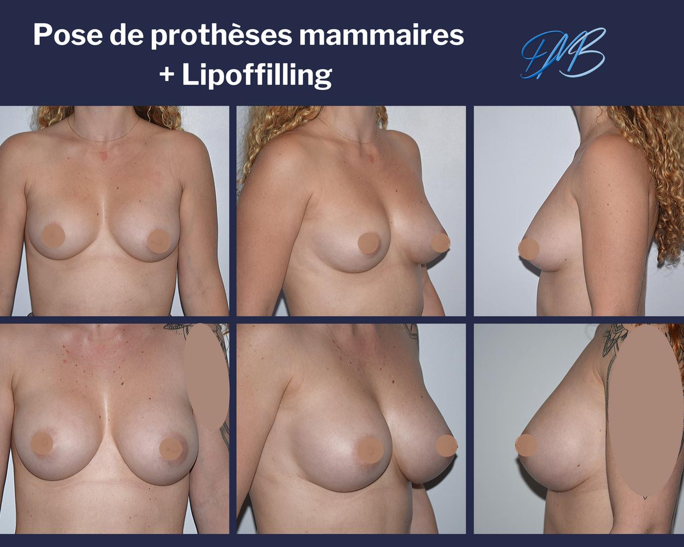 Augmentation mammaire composite : prothèse + lipofilling