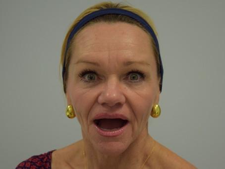 La toxine botulique fige le visage ? La toxine botulique diminue les expressions ?