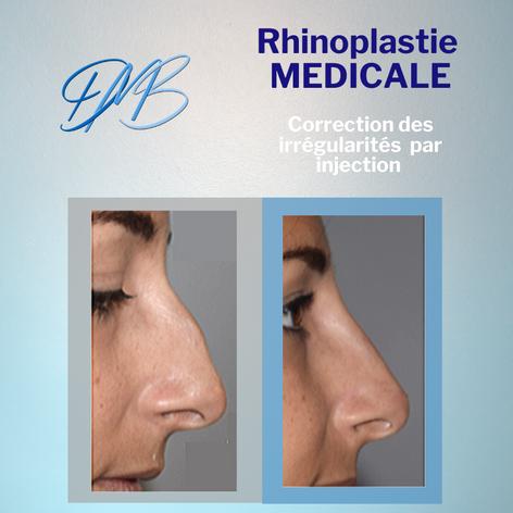 rhinoplastie medicale.png