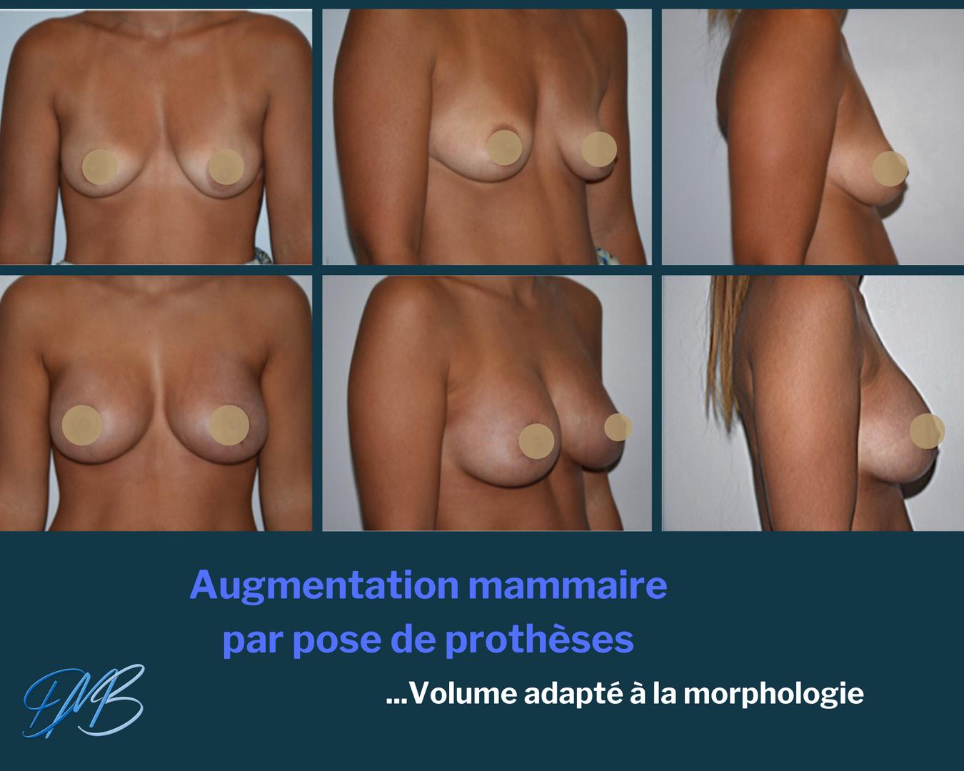 Augmentation mammaire par pose de prothèses + réduction d'aréole.