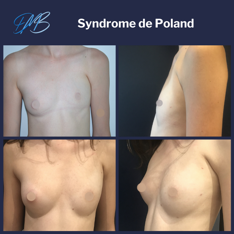 Syndrome de poland : reconstruction par lipofilling
