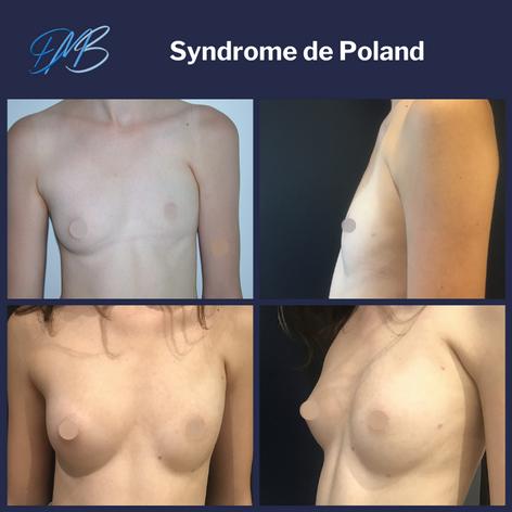 Syndrome de poland : reconstruction par lipofilling
