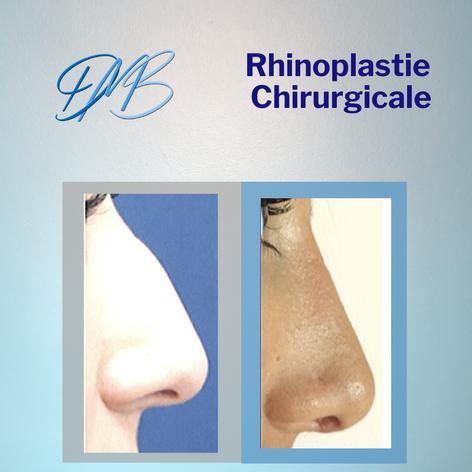 rhinoplastie chirurgicale.png