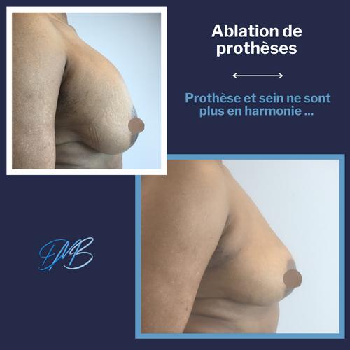 Ablation de prothèses mammaires