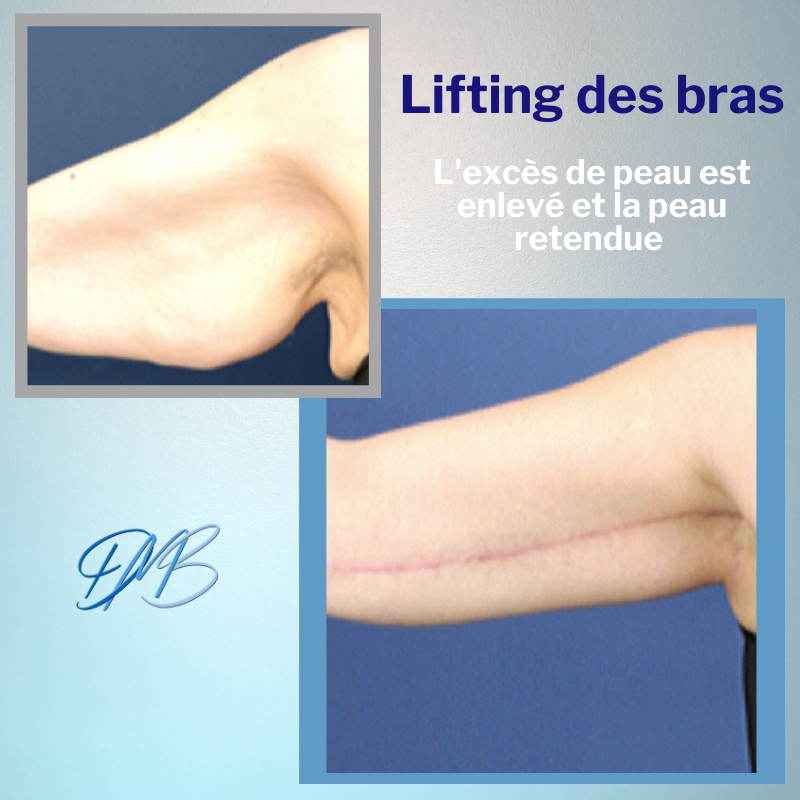 AA lifting des bras.png