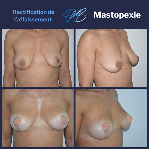 lifting des seins ; Mastopexie