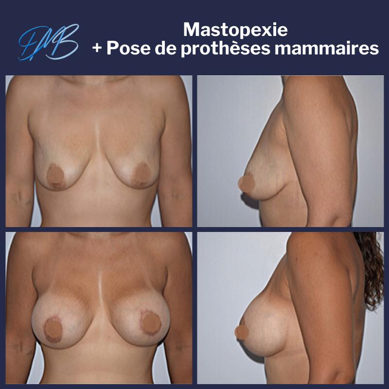 augmentation mammaire par pose de prothèse + mastopexie round block