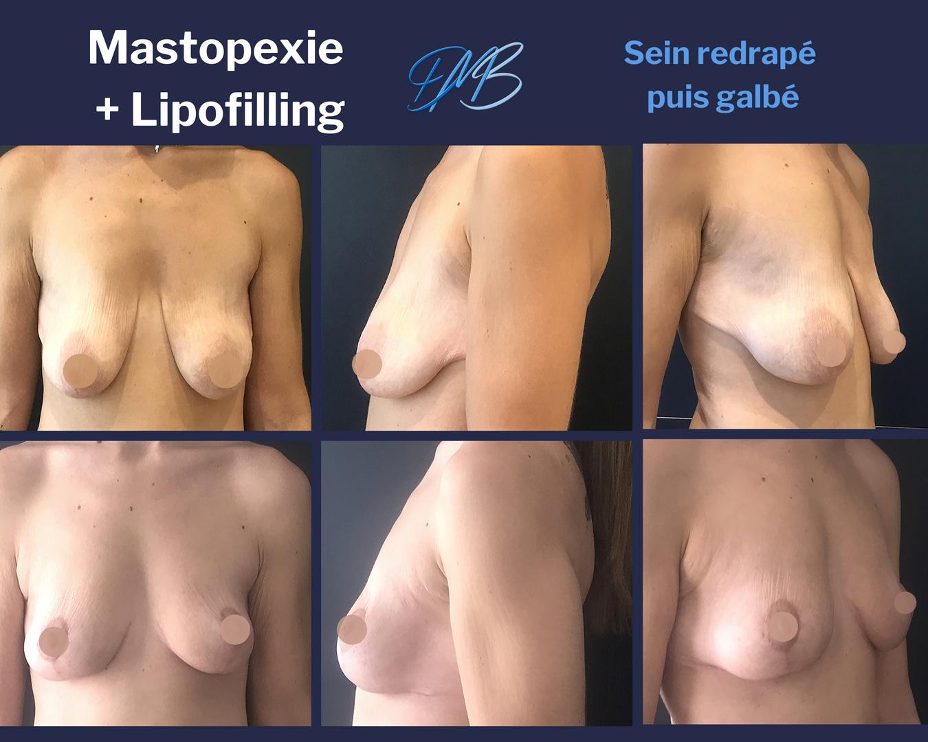 Mastopexie + lipofilling