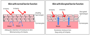 Skin with normal barrier function and disrupted barrier function